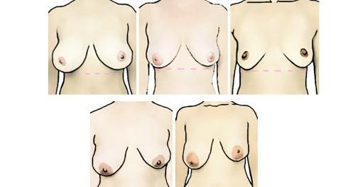 Что делать если одна грудь больше другой