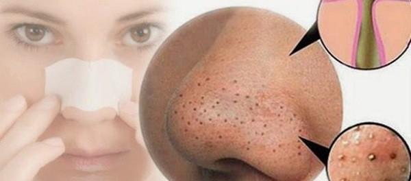 Легкие домашние средства для очистки пор носа и лица