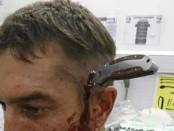Нож в голове велосипедист ЮАР фото