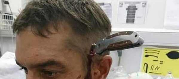 Велосипедист сам пришел к врачам с ножом в голове, отбившись от драки