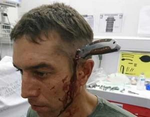 Шон нож в голове ЮАР фото