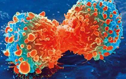 Найден эффективный препарат против рака последней стадии