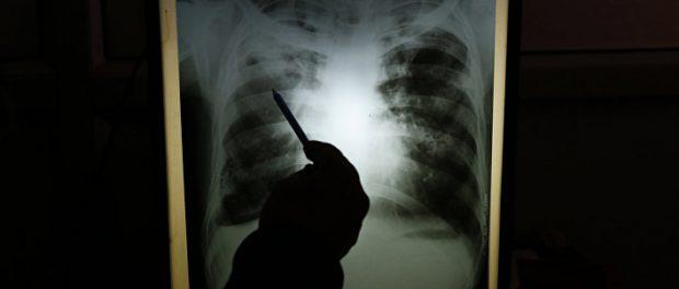 Пандемия приведёт ещё к вспышке туберкулеза